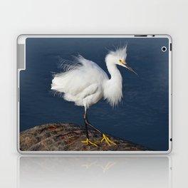 morning hair Laptop & iPad Skin