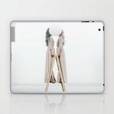 Same side Laptop & iPad Skin