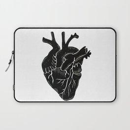 Black Heart II Laptop Sleeve