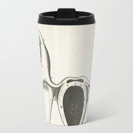 Ectopic pregnancy, 1672 Travel Mug