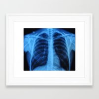 medical Framed Art Prints featuring x ray medical radiography by tony tudor