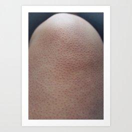 Skin-1 Art Print