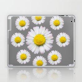 WHITE SHASTA DAISY FLOWERS  DECORATIVE GREY ART Laptop & iPad Skin