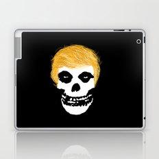 Trumpzig Laptop & iPad Skin