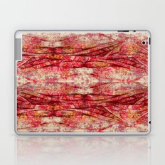 Ripped and Rosy Laptop & iPad Skin