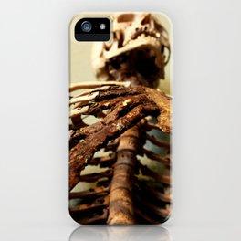 Foley Skeleton iPhone Case