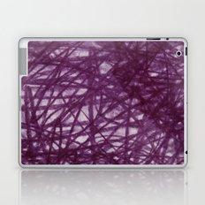 Ophelia Black Laptop & iPad Skin