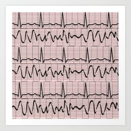 Cardiac Rhythm Strips EKG Art Print