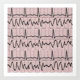 Cardiac Rhythm Strips EKG Art Print
