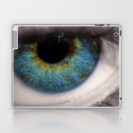 Central Heterochromia Eye Laptop & iPad Skin