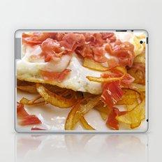 Bacon & Egg Breakfast Laptop & iPad Skin