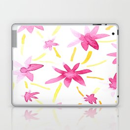 Magenta Love Laptop & iPad Skin
