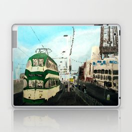 Blackpool Lancashire England Acrylic Fine Art Laptop & iPad Skin