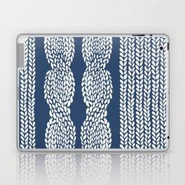Cable Row Navy 1 Laptop & iPad Skin