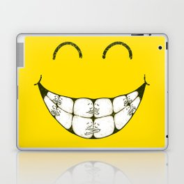 Hugs and smile Laptop & iPad Skin