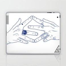 Make My Hands Famous - Part IV Laptop & iPad Skin