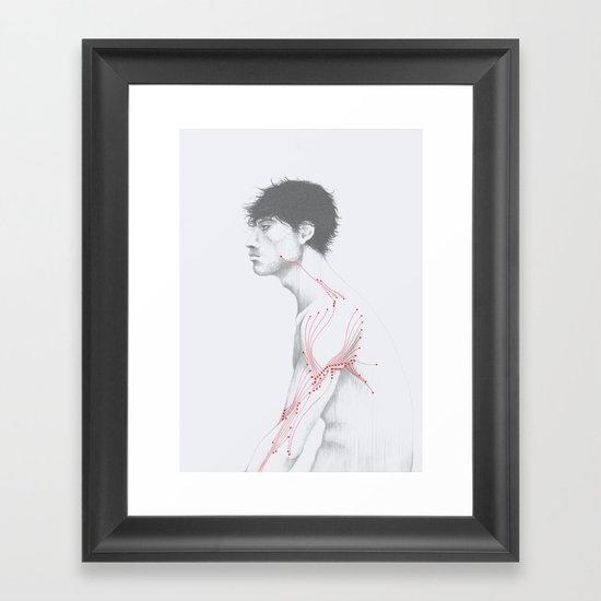 Circuitry Surgery 1 Framed Art Print