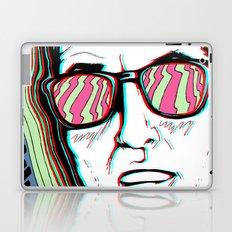 Fix Your Eyes! Laptop & iPad Skin