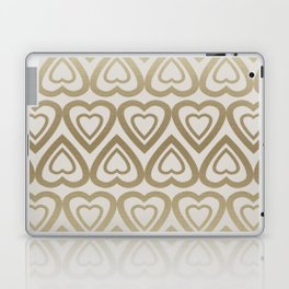 Golden Hearts Valentine - Gold Laptop & iPad Skin