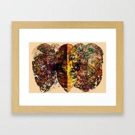 The Human Centipede Framed Art Print