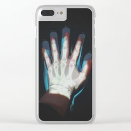 Bones Clear iPhone Case