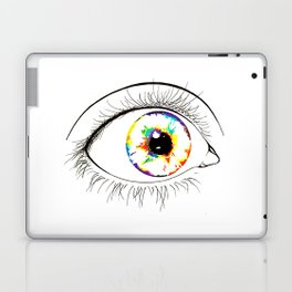 Surprise   Laptop & iPad Skin