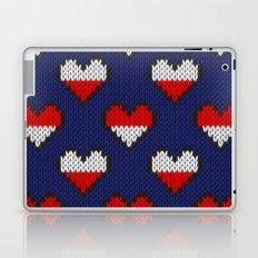 Heart half full half empty Laptop & iPad Skin