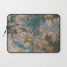 Ana: Silk 2 Laptop Sleeve