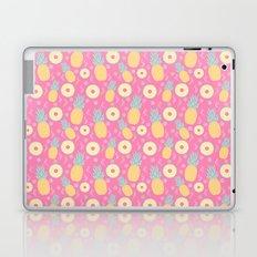 Pink Pinapple Laptop & iPad Skin