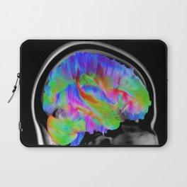 Brains in Color Laptop Sleeve