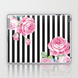 Black white blush pink watercolor floral stripes Laptop & iPad Skin