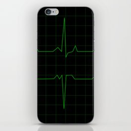 Normal Heart Rhythm iPhone Skin