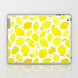 Beautiful Lemon Pattern Laptop & iPad Skin