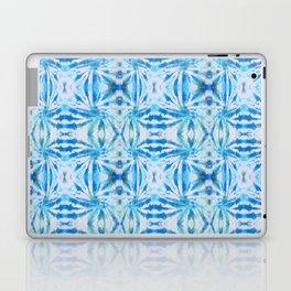 Summer Vibes Tie Dye in Lagoon Blue Laptop & iPad Skin