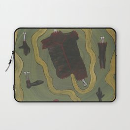 Dismembered Laptop Sleeve