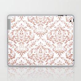 Rose Gold Glitter and White Damask Laptop & iPad Skin
