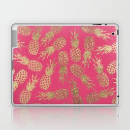 Tropical neon pink faux gold pineapple fruit pattern Laptop & iPad Skin