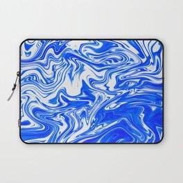 Marbled XX Laptop Sleeve