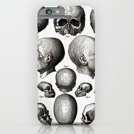 Ratio of Lobes Responsible for the Psychological Type of Person (Phrenology) iPhone Case