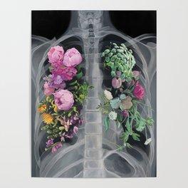 Pneumoflora X-Ray Poster