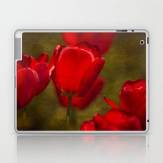 Springing Up Tulips Laptop & iPad Skin