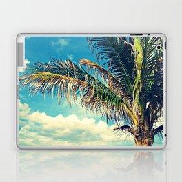 Breezy Beach Palm Laptop & iPad Skin