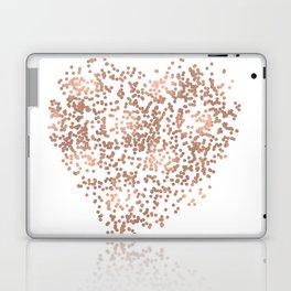 Rose Gold Glam Confetti Heart Laptop & iPad Skin