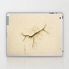Wound Laptop & iPad Skin