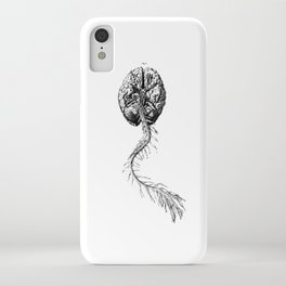 Brain Anatomy iPhone Case