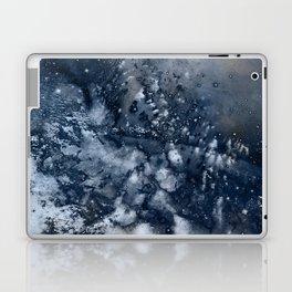 η Propus Laptop & iPad Skin