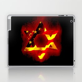 UNITED STATE OF ISREAL 011 Laptop & iPad Skin