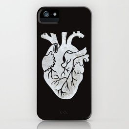 Anatomical Human Heart: Unusual Love Gift iPhone Case
