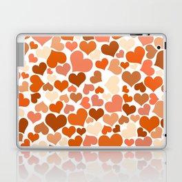 Heart_2014_0902 Laptop & iPad Skin