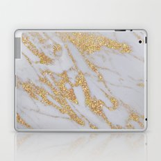 Marble - Rose Gold Marble with Yellow Gold Glitter Laptop & iPad Skin
